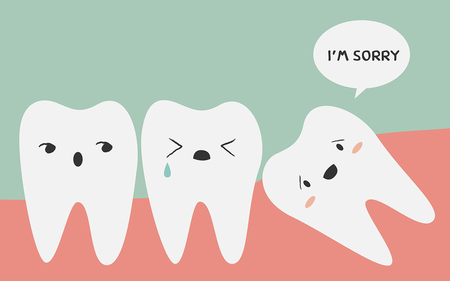 Wisdom Teeth Orlando Clermont FL